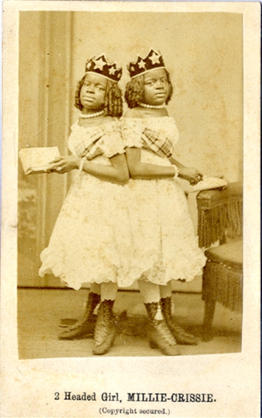 Conjoined  Twins - CDV